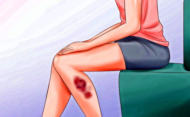 Unexplainable Bruises